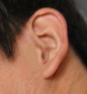 月9ドラマラヴソング藤原さくら(佐野さくら)さんの耳と比べるための耳画像