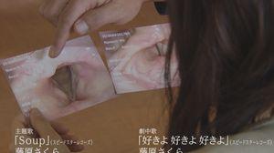 ラブソング(ラヴソング)第7話佐野さくら(藤原さくら)の喉の写真に喉頭がん?かもしれないポリープがある。