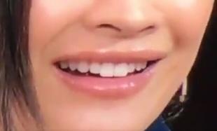 ミヤネ屋出演時の篠原涼子の唇が不自然で変と話題になっていました2
