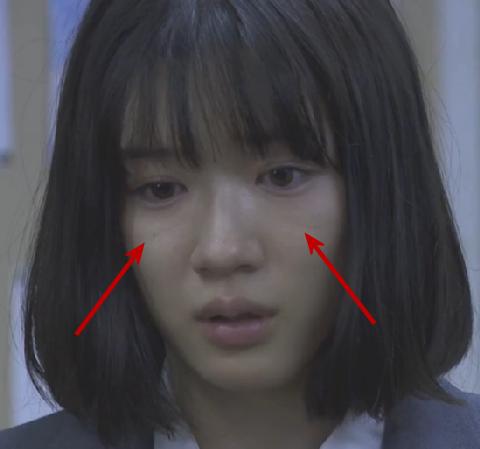 永野芽郁さんの気になる顔の目の下の線(ゴルゴ線・ゴルゴライン)の画像2