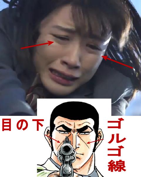永野芽郁さんの気になる顔の目の下の線(ゴルゴ線)の画像1